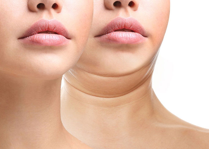 Cosmetic Injectables | Resurgence Wellness